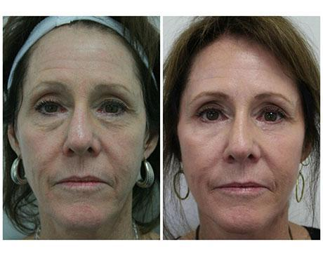 Case 8197 - Stem Cell Face Lift Gallery (Before & After)