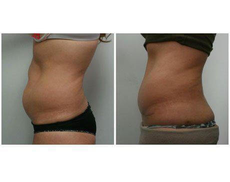 Case 8257 - Tummy Tuck Gallery (Before & After) (2)