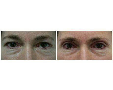 Case 8315 - Blepharoplasty Gallery (Before & After)