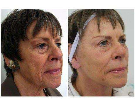 Case 8350 - Face Lift Gallery (Before & After) (3)