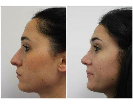 Case 8359 - Rhinoplasty Gallery (Before & After) (2)