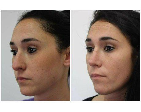 Case 8359 - Rhinoplasty Gallery (Before & After) (3)