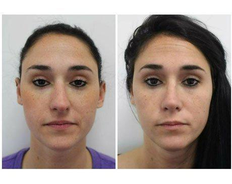 Case 8359 - Rhinoplasty Gallery (Before & After)