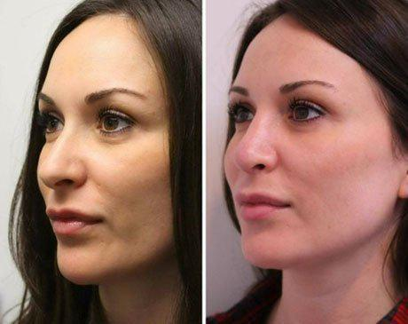 Case 8419 - Rhinoplasty Gallery (Before & After) (2)