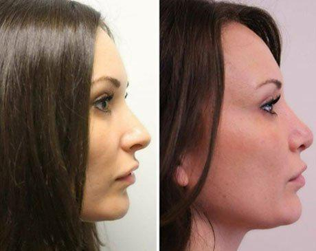 Case 8419 - Rhinoplasty Gallery (Before & After) (3)