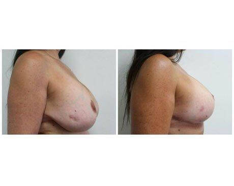 Case 8478 - Breast Lift and Reduction Gallery (Before & After) (2)