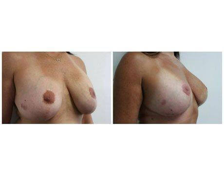Case 8478 - Breast Lift and Reduction Gallery (Before & After) (3)