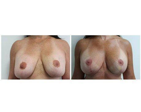 Case 8478 - Breast Lift and Reduction Gallery (Before & After)