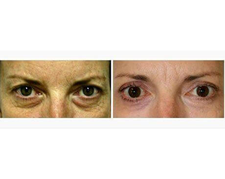 Case 848 - Blepharoplasty Gallery (Before & After)