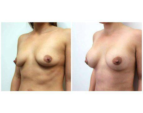 Case 8505 - Breast Augmentation Gallery (Before & After) (2)