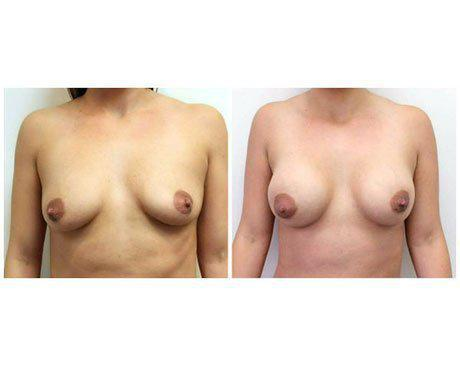 Case 8505 - Breast Augmentation Gallery (Before & After)
