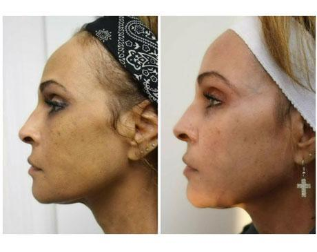 Case 8637 - Chemical Peels Gallery (Before & After) (2)