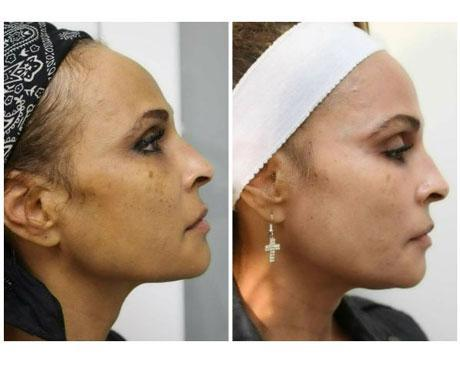 Case 8637 - Chemical Peels Gallery (Before & After) (3)