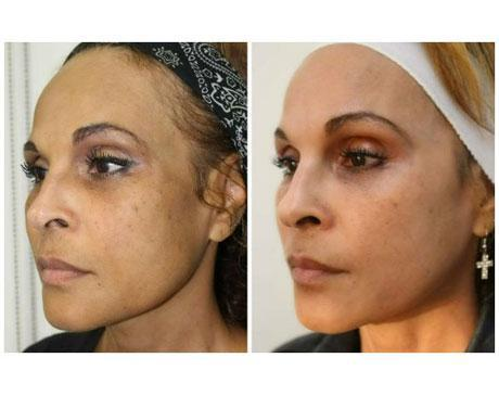 Case 8637 - Chemical Peels Gallery (Before & After) (4)