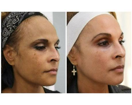 Case 8637 - Chemical Peels Gallery (Before & After) (5)
