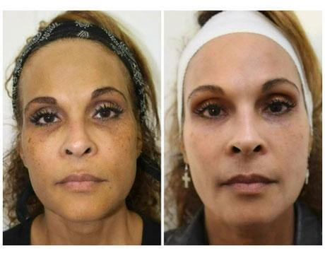 Case 8637 - Chemical Peels Gallery (Before & After)