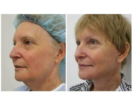 Case 8954 - Face Lift Gallery (Before & After) (3)