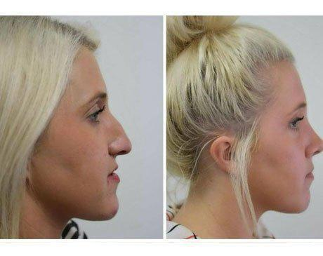 Case 9032 - Blepharoplasty Gallery (Before & After) (2)