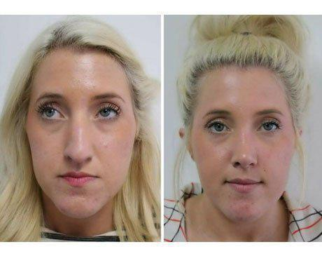 Case 9032 - Blepharoplasty Gallery (Before & After) (3)