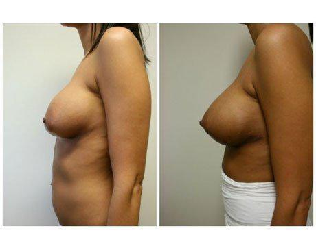 Case 9470 - Breast Lift and Reduction Gallery (Before & After) (2)