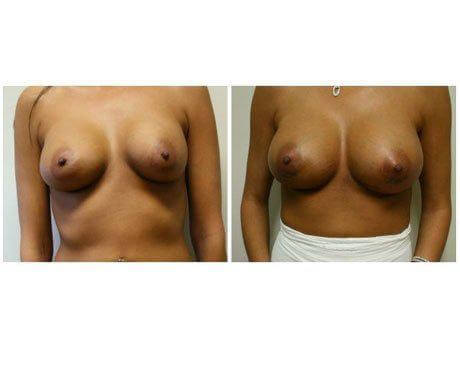 Case 9470 - Breast Lift and Reduction Gallery (Before & After)