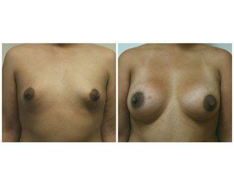 Case 9512 - Breast Augmentation Gallery (Before & After)