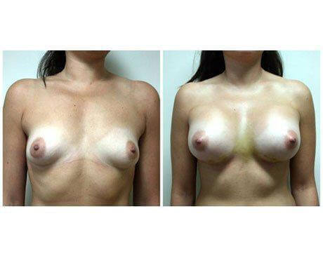 Case 9521 - Breast Augmentation Gallery (Before & After)