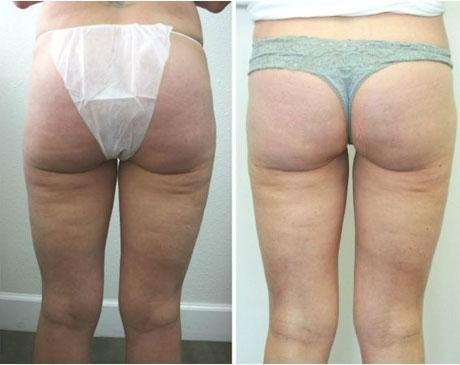 Case 962 - Liposuction Gallery (Before & After) (2)