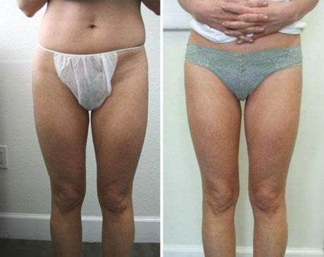 Case 962 - Liposuction Gallery (Before & After)