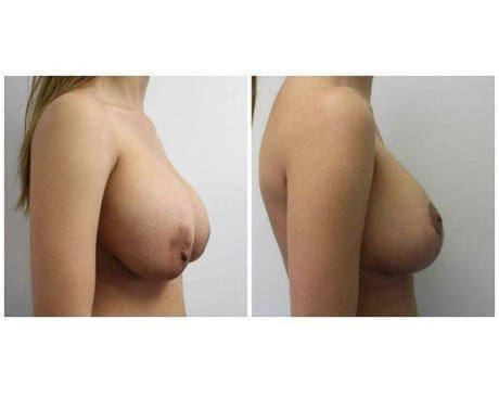 Case 9741 - Breast Lift and Reduction Gallery (Before & After) (2)