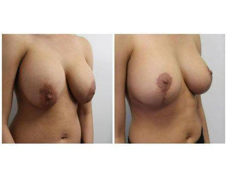 Case 9741 - Breast Lift and Reduction Gallery (Before & After) (3)