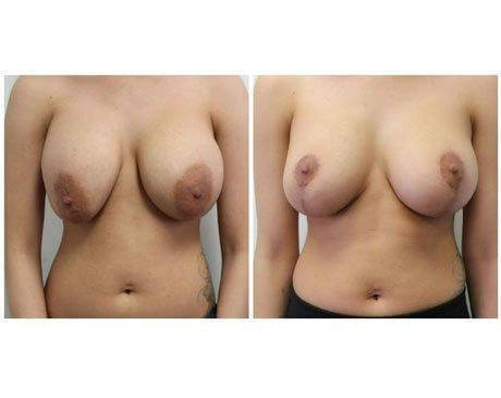 Case 9741 - Breast Lift and Reduction Gallery (Before & After)