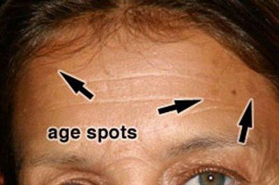 Age Spots - Sun Damage Treatment