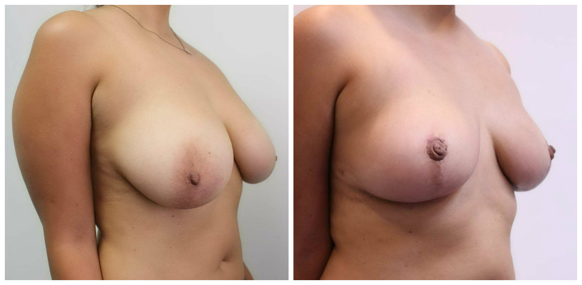 Breast Reduction Right 45