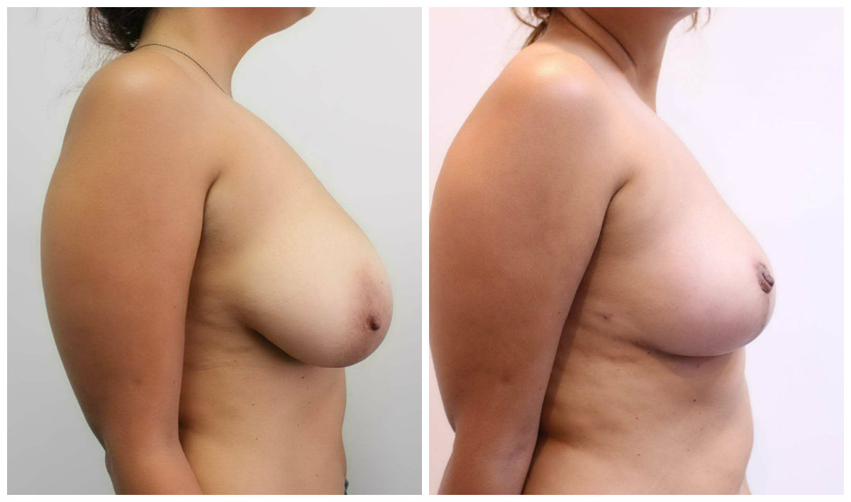 Breast Reduction Side