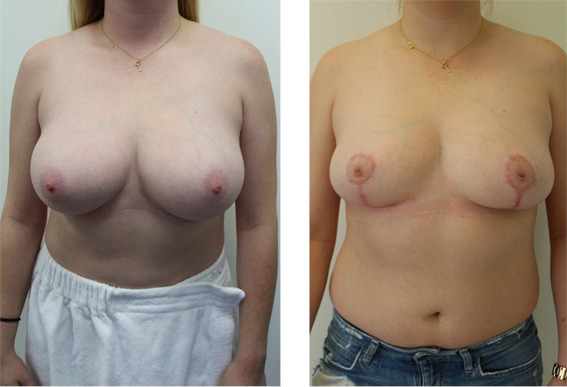 14099 - Breast Reduction - Front Collage