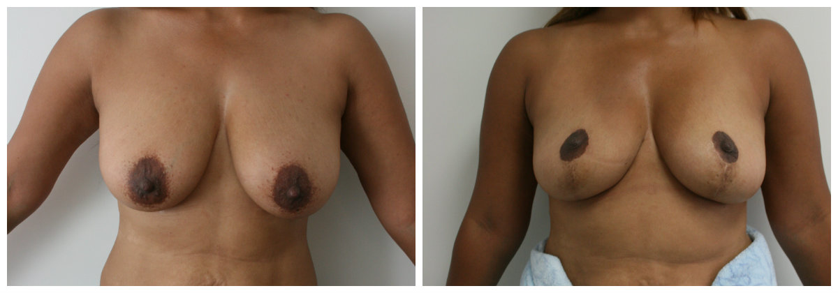 Breast Reduction and Lift 1 year post op