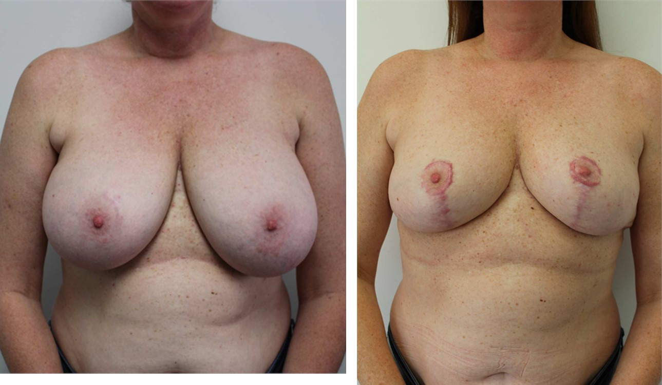 8393 - Breast Reduction - Front Collage