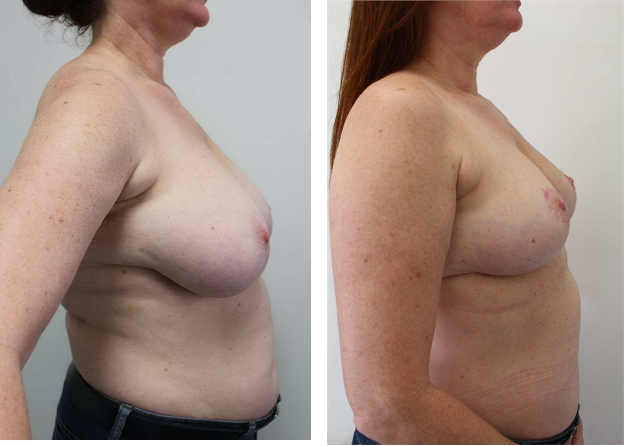 8393 - Breast Reduction - side collage