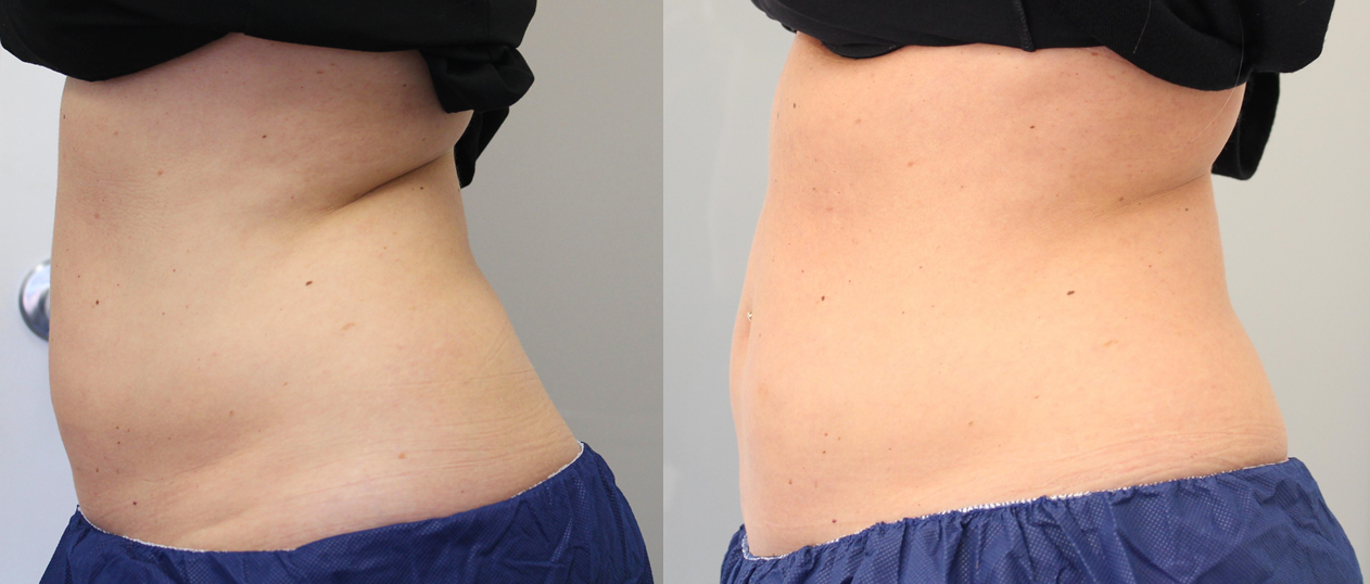 Coolsculpting side stomach before afters