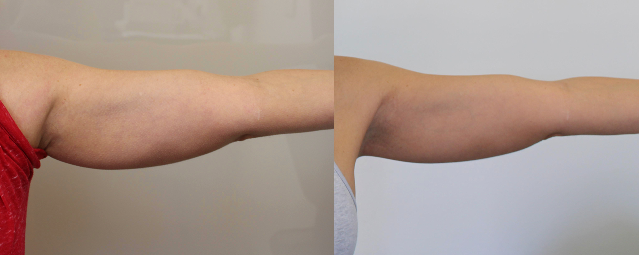 Coolsculpting before after arms