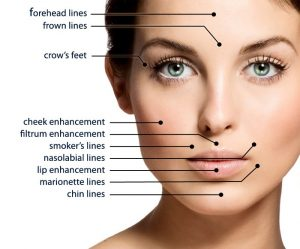 Areas that Botox Treates