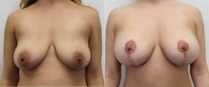 Breast Lift Pictures Before & After