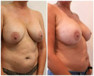 Breast Augmentation Review Los Angeles