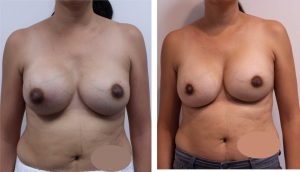 Breast Replacement & Removal Photos Los Angeles