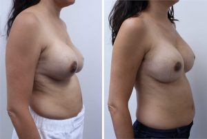 Breast Removal and Replacement Results Los Angeles