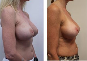 Breast Removal and Replace Before & Afters Pictures Dr. Los Angeles