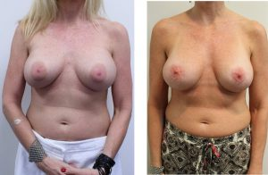 Dr. Youssef Breast Removal and Replacement Before & Afters