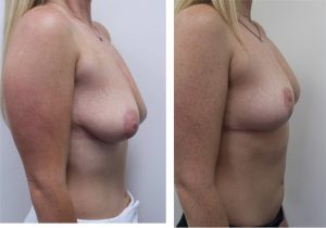 Breast Reduction Results Los Angeles