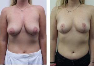 Breast Reduction Pictures Los Angeles Surgeon